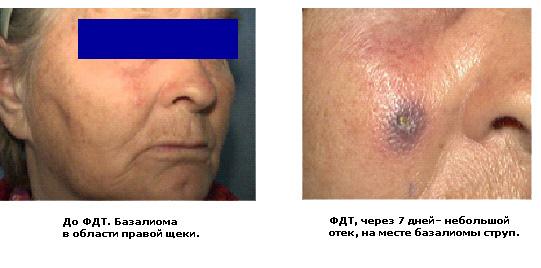 Варикоз лечение и операции в москве